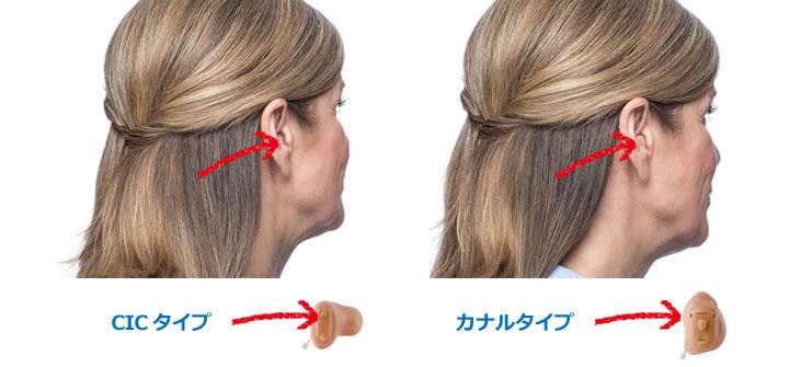 耳穴型の補聴器
